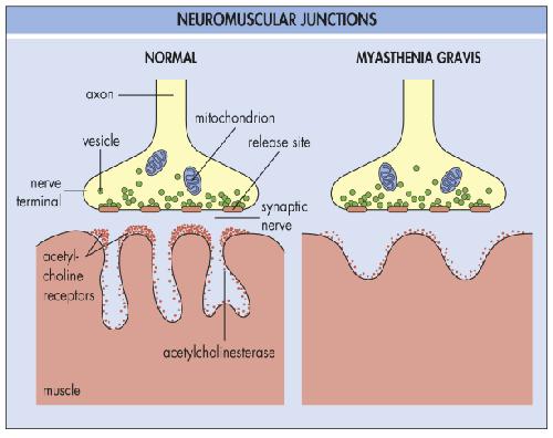Myasthenia-gravis (MG) | ByHealth.com